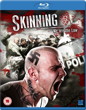 Skinning - We Are The Law